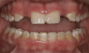 Patient with two missing teeth