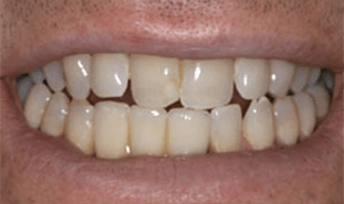 Dental crowns attached to implant posts