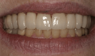 Teeth with stain removal