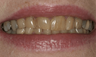 Closeup of severely discolored teeth