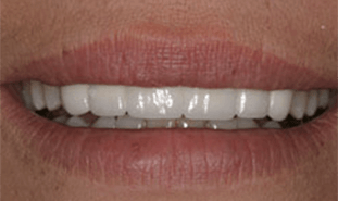 Teeth flawlessly corrected with closed gap