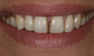 Long front teeth with large gap betwee