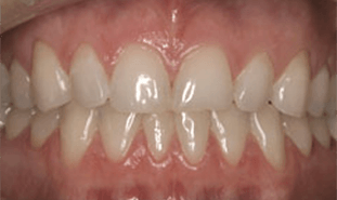 Mild discoloration and dental crowding