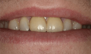 Teeth with dark coloring at gums