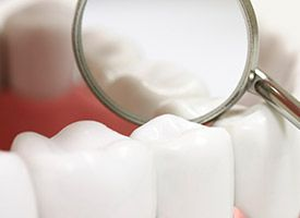 Dental sealant treated tooth enlarged in mirror