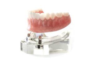 Model of implant-supported denture